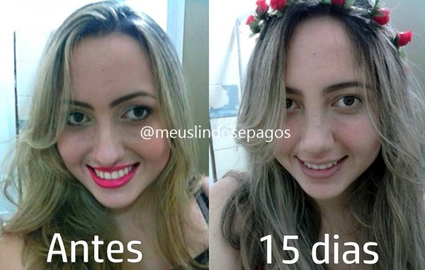 antes e 15-3