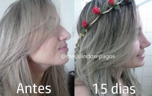 antes e 15