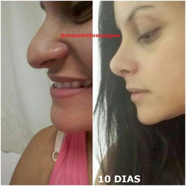 10dias1-2