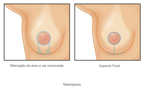 mastopexia7