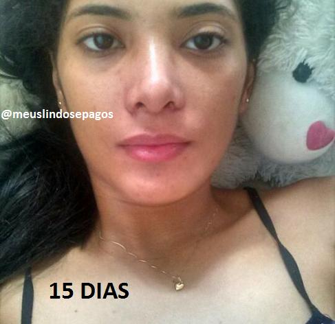15 DIAS