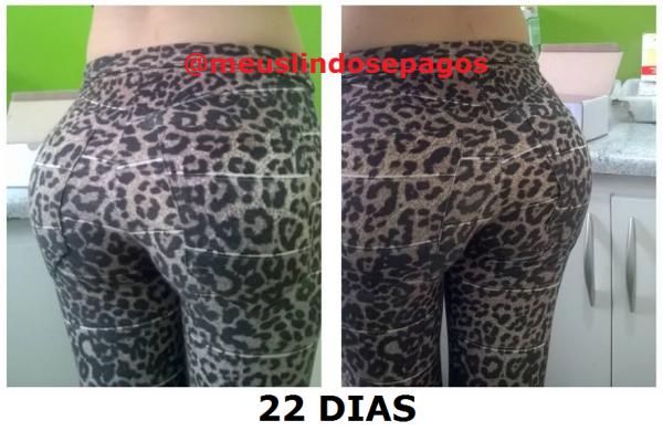 22DIAS5