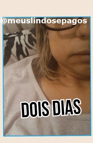 2DIAS