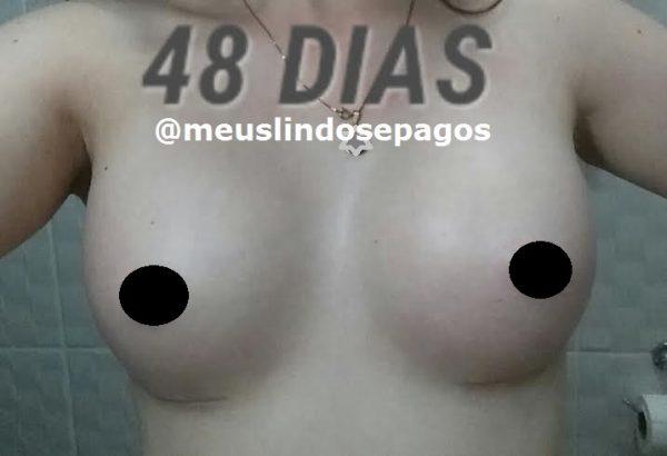 48dias