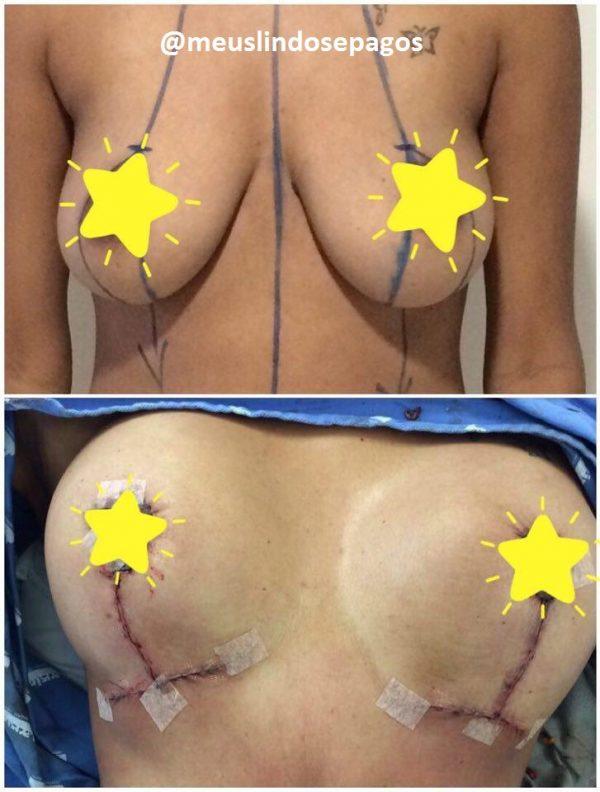 antes e depois mama