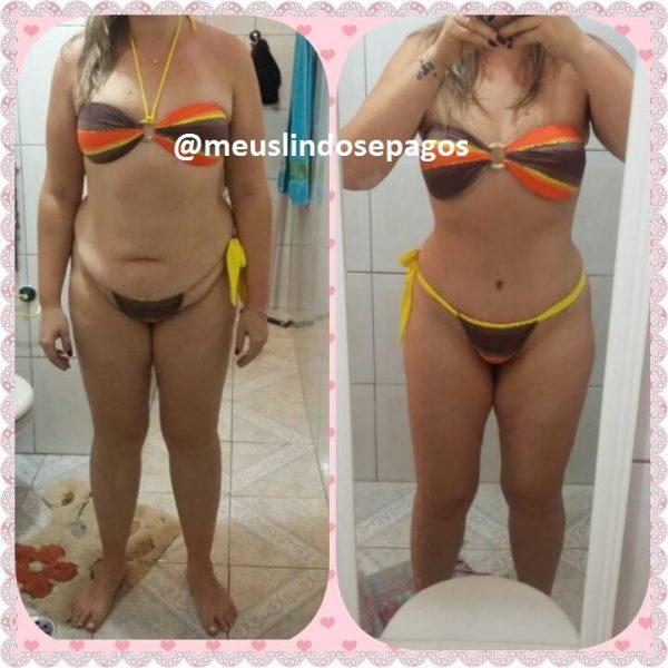 antes e depois5