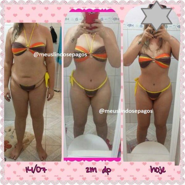 antes e depois6