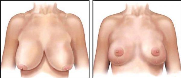 redução mama3