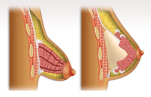 mama tuberosa-PAINT