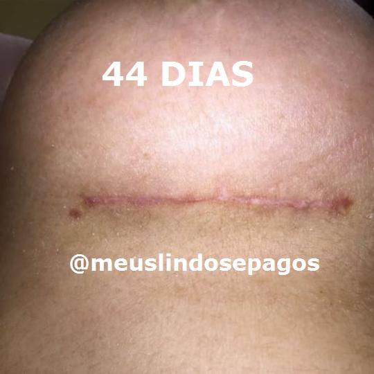 44dias