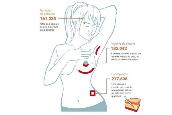 cirurgias mais procuradas-PAINT