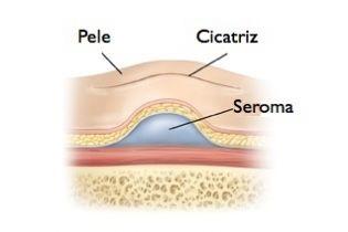 seroma PAINT