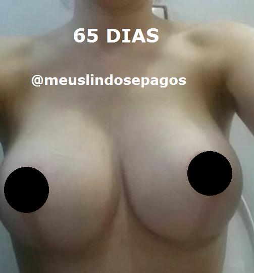 65dias-1