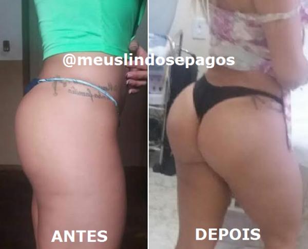 antes e depois4