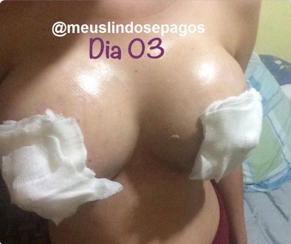 3dias